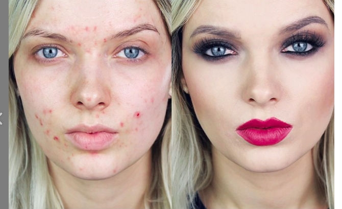 YouTube-Video-From-Acne-Make-Up-Coverage-Guru-Em-Ford-Called-You-Look-Disgusting-Gets-417-Million