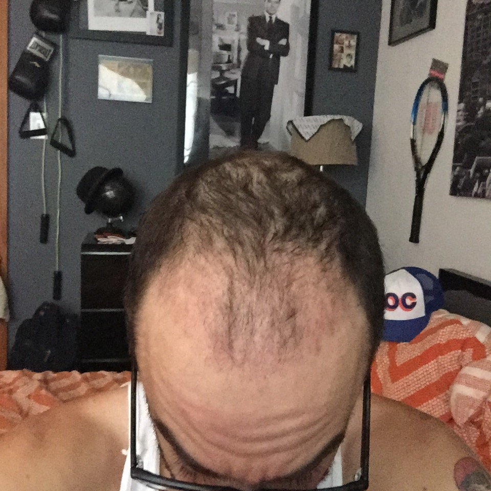Bald Balding Man Hair Transplant Before and After Body Positivity Mens Blog IMG_0939