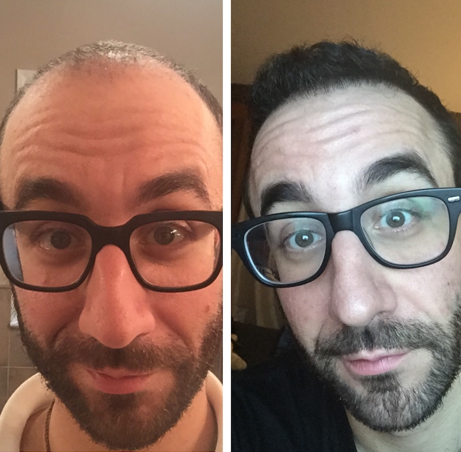 Bald Balding Man Hair Transplant Before and After Body Positivity Mens Blog IMG_4574